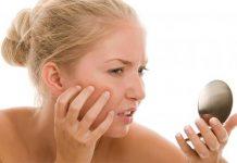 salep gatel,kulit gatal,kulit sensitif,masalah kulit